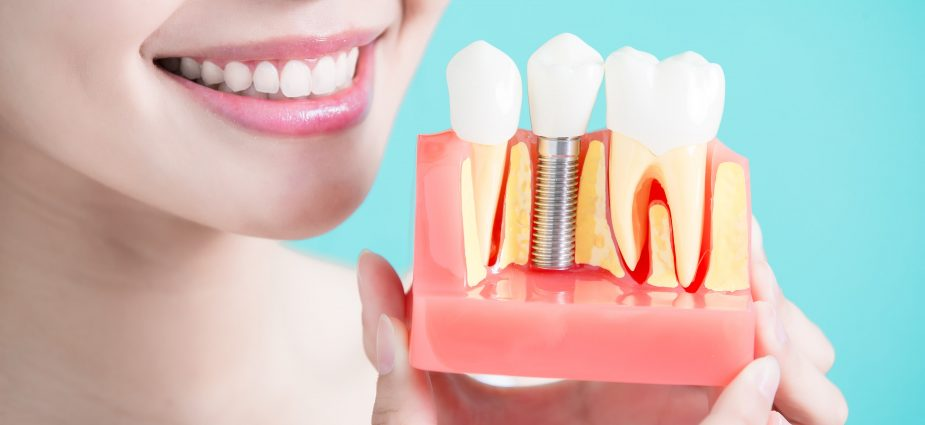 dental extraction in Yakima